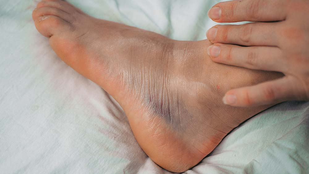 how long does it take for a sprained ankle to heal